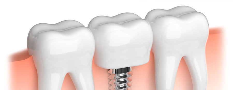 dental implants surrey bc