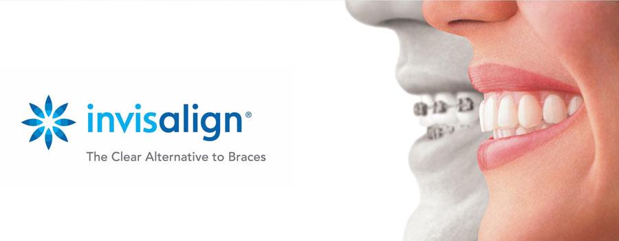 invisalign - alternative to braces